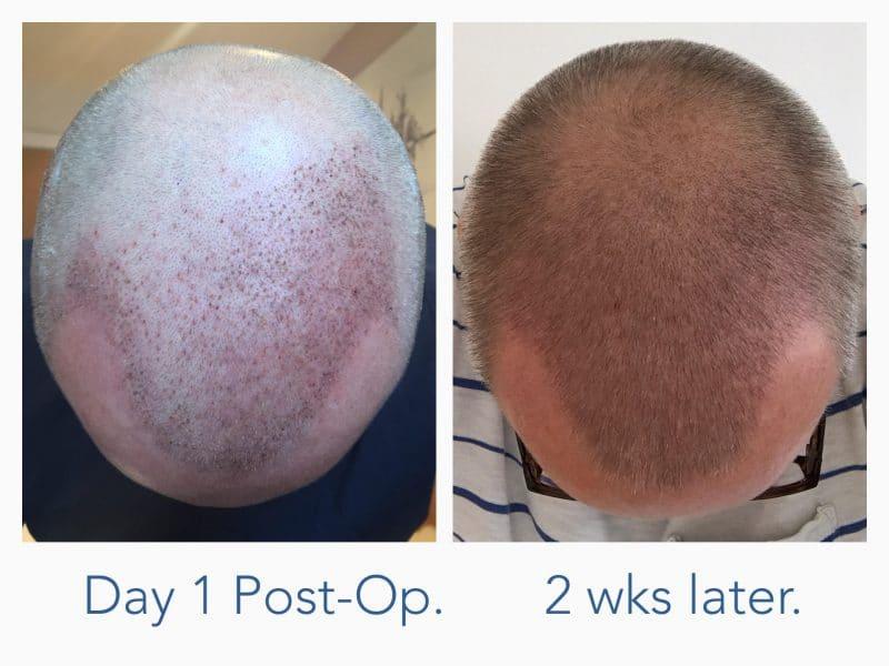 Bilde av hårtransplantasjon første dagen og 2 uker senere